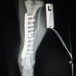 Fracture repair